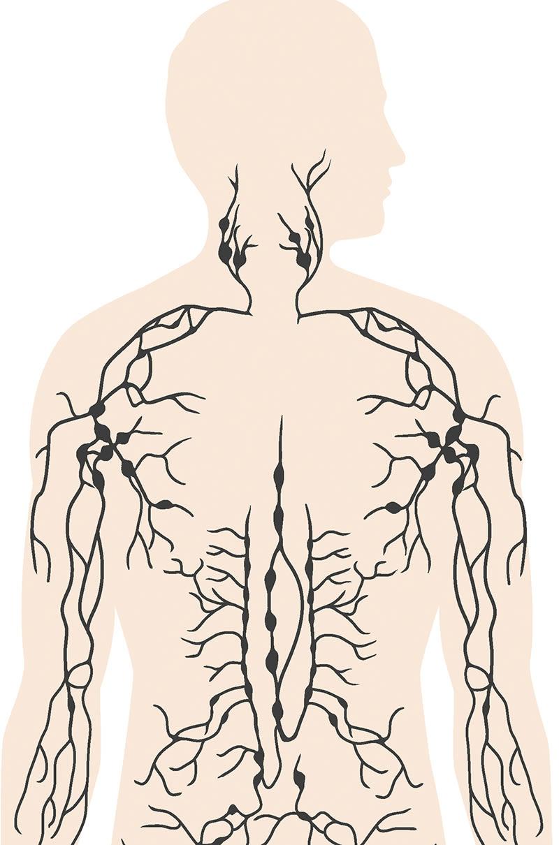 prostatacancer spridning till lymfkörtlar prognos