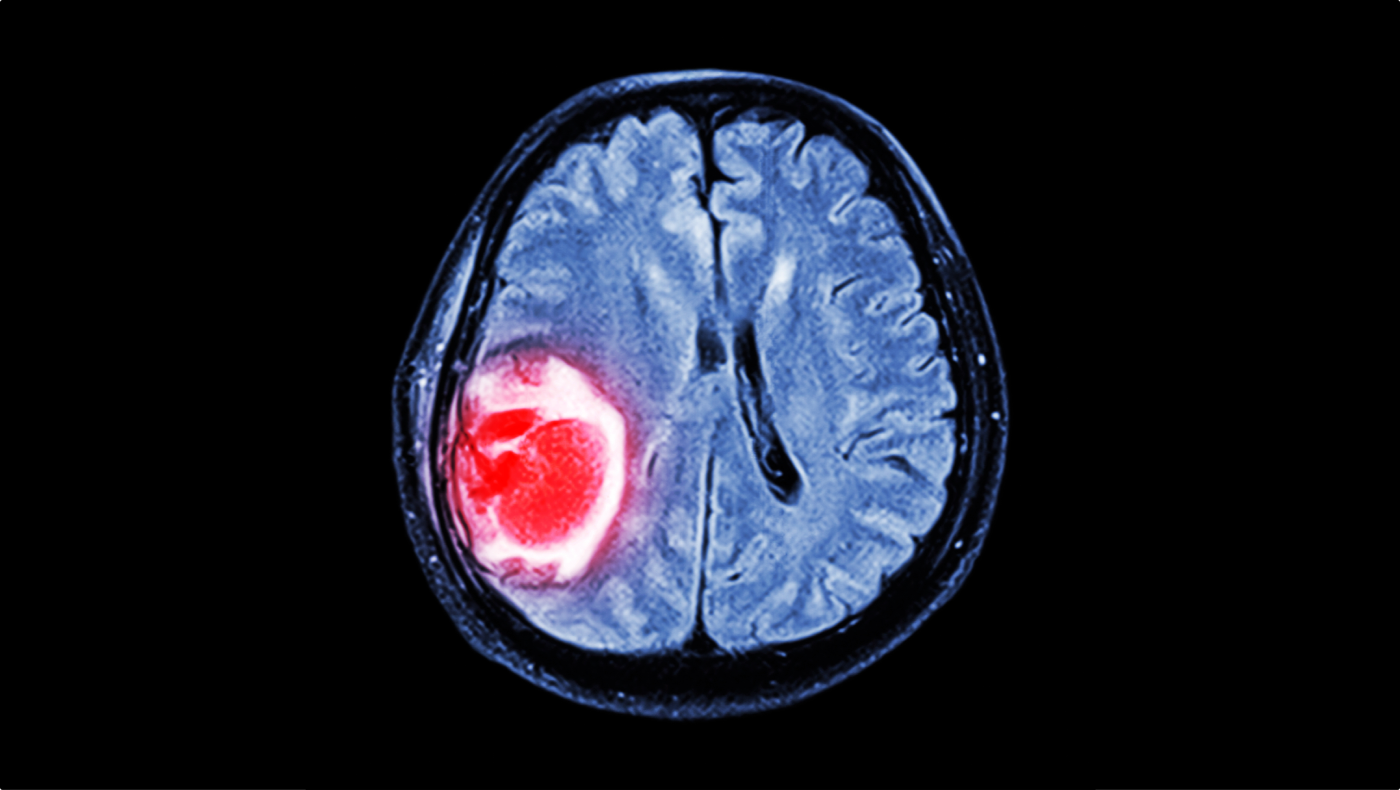 tumör i hjärnan symtom