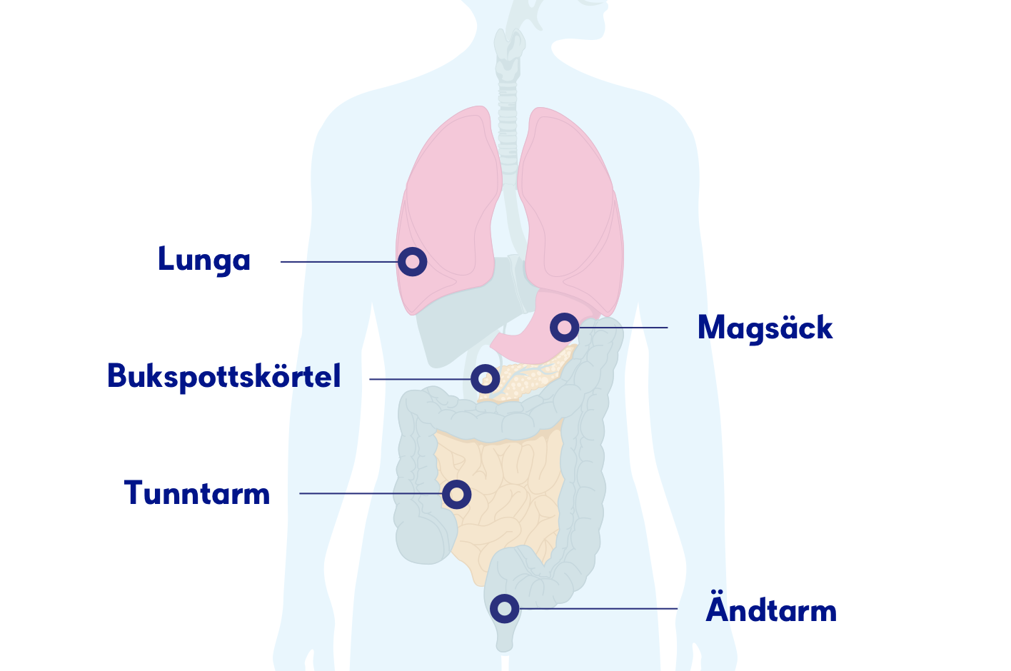 tumör tjocktarmen godartad