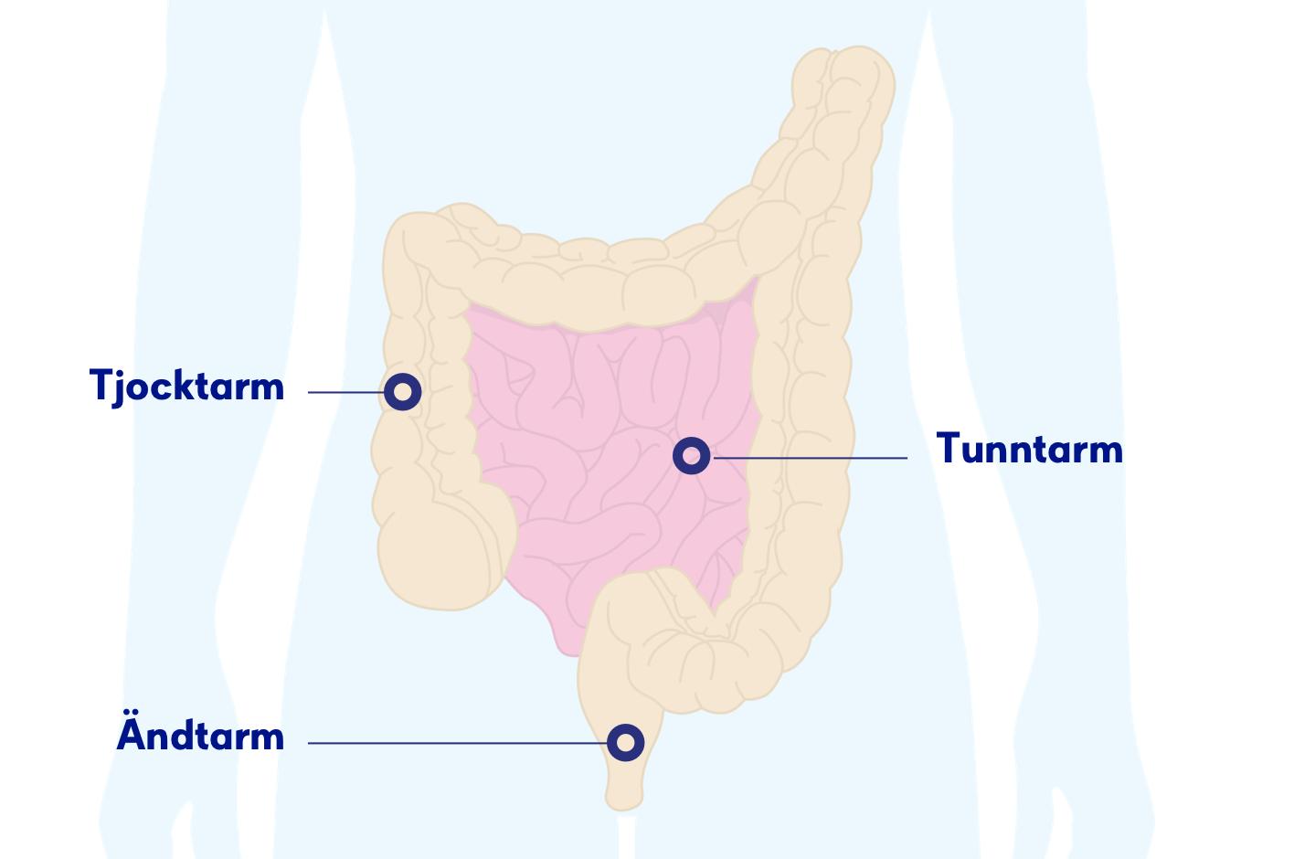 sår i tunntarmen