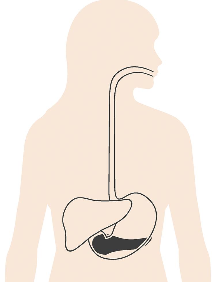 tumor i ryggen