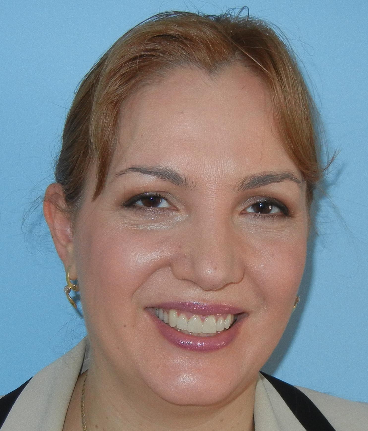 906cbe89e70 Ada Girnita, hudläkare vid Karolinska universitetssjukhuset.
