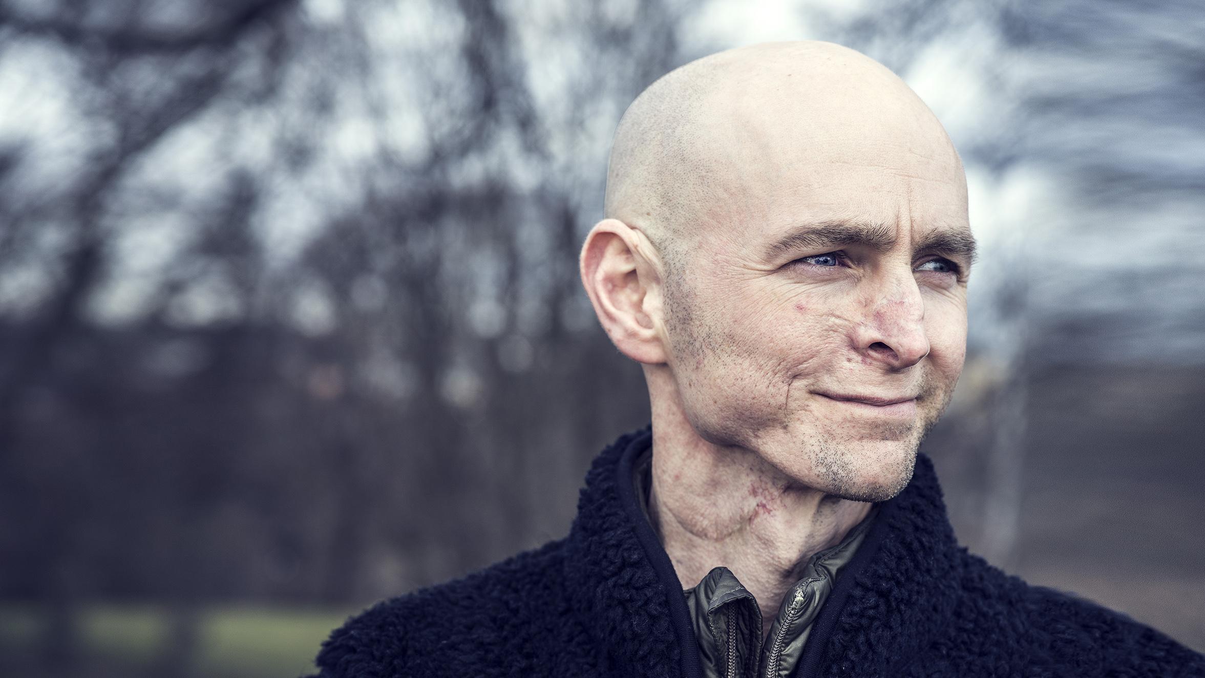 Calle Francke drabbades av cancer när han var 27 år gammal.