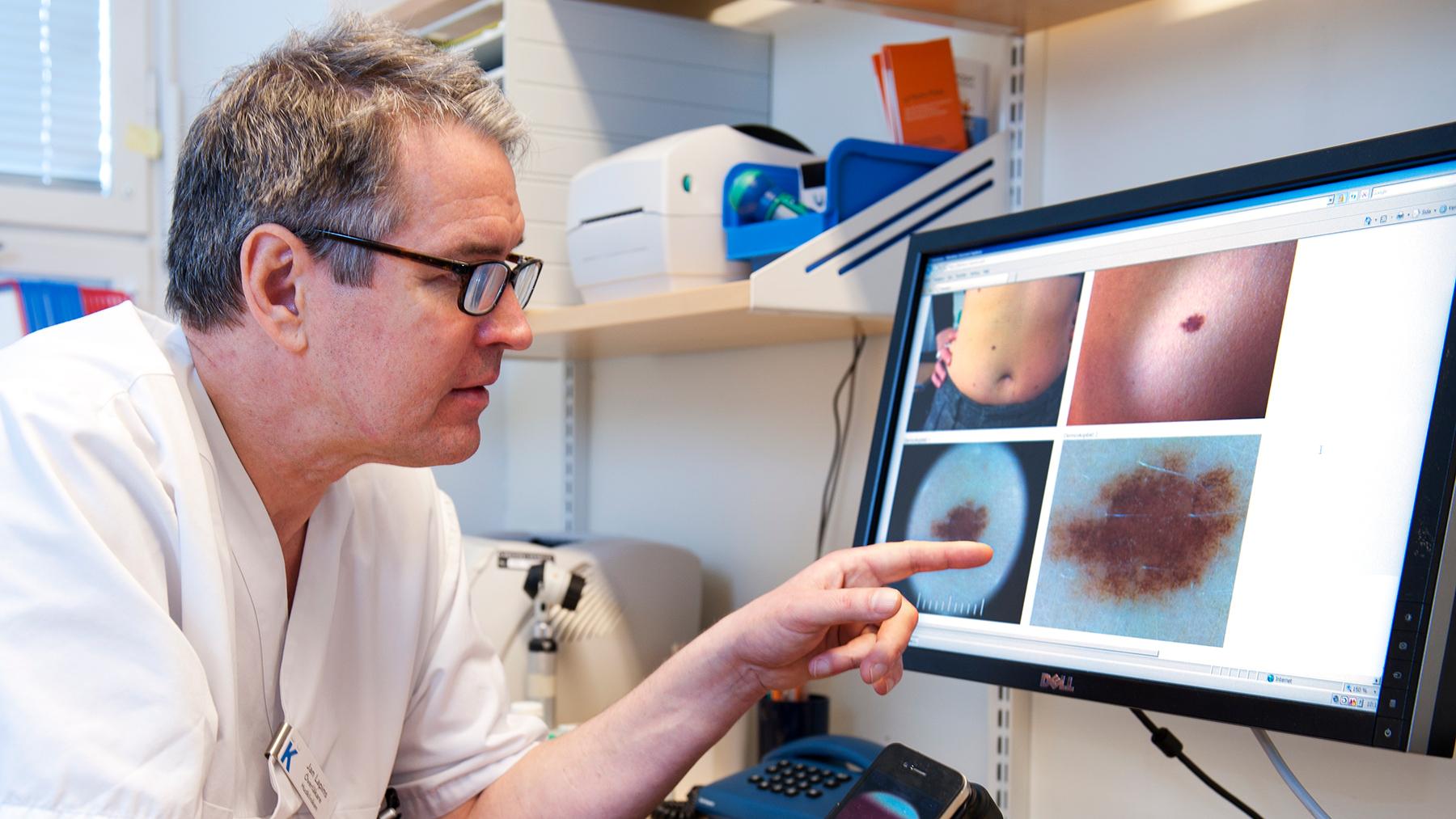 Läkaren Jan Lapins undersöker ett födelsemärke med ett dermatoskop.