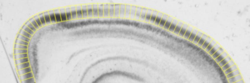 Stalefish: Spatial ISH Analysis banner