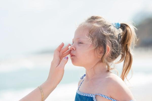zonnebrand-meisje-strand