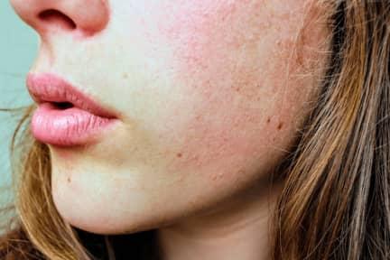 Guide: Sådan finder du det perfekte hudplejeprodukt