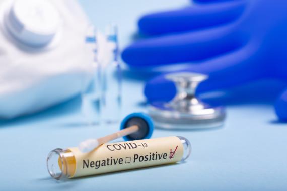 Szybki test diagnostyczny antygen SARS-CoV-2