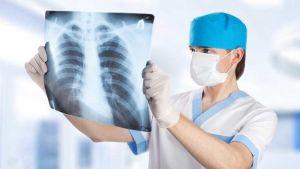 Armenia tuberculosis
