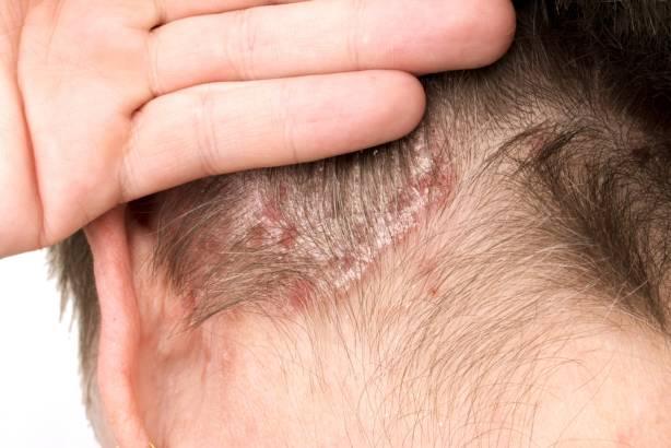 Apa itu Psoriasis: Gejala, Penyebab, Diagnosis, dan Cara Mengobati