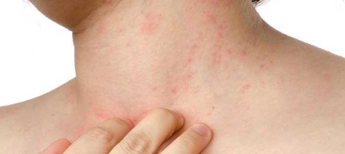 Psoriasis - Gejala, penyebab dan mengobati