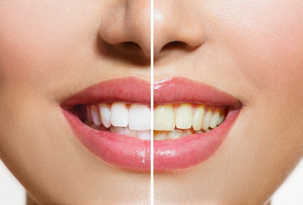 white-teeth-vs-yellow-teeth_li8smj Tips dan Cara Alami Memutihkan Gigi Di Rumah Beauty Health Tips Kecantikan Tips Kesehatan Woman