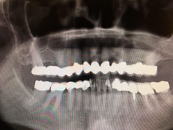 Orthopantomogramm Panoramaschichtaufnahme