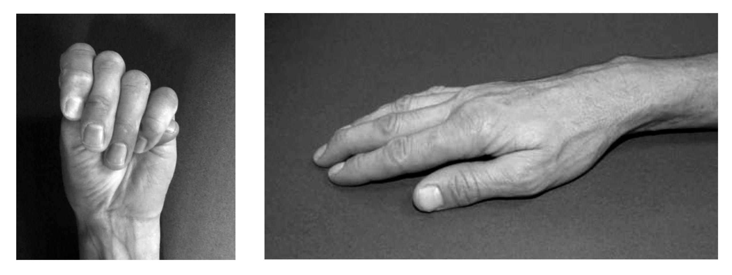 las manos de paganini con marfan
