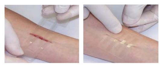 how to use 3m steri strips