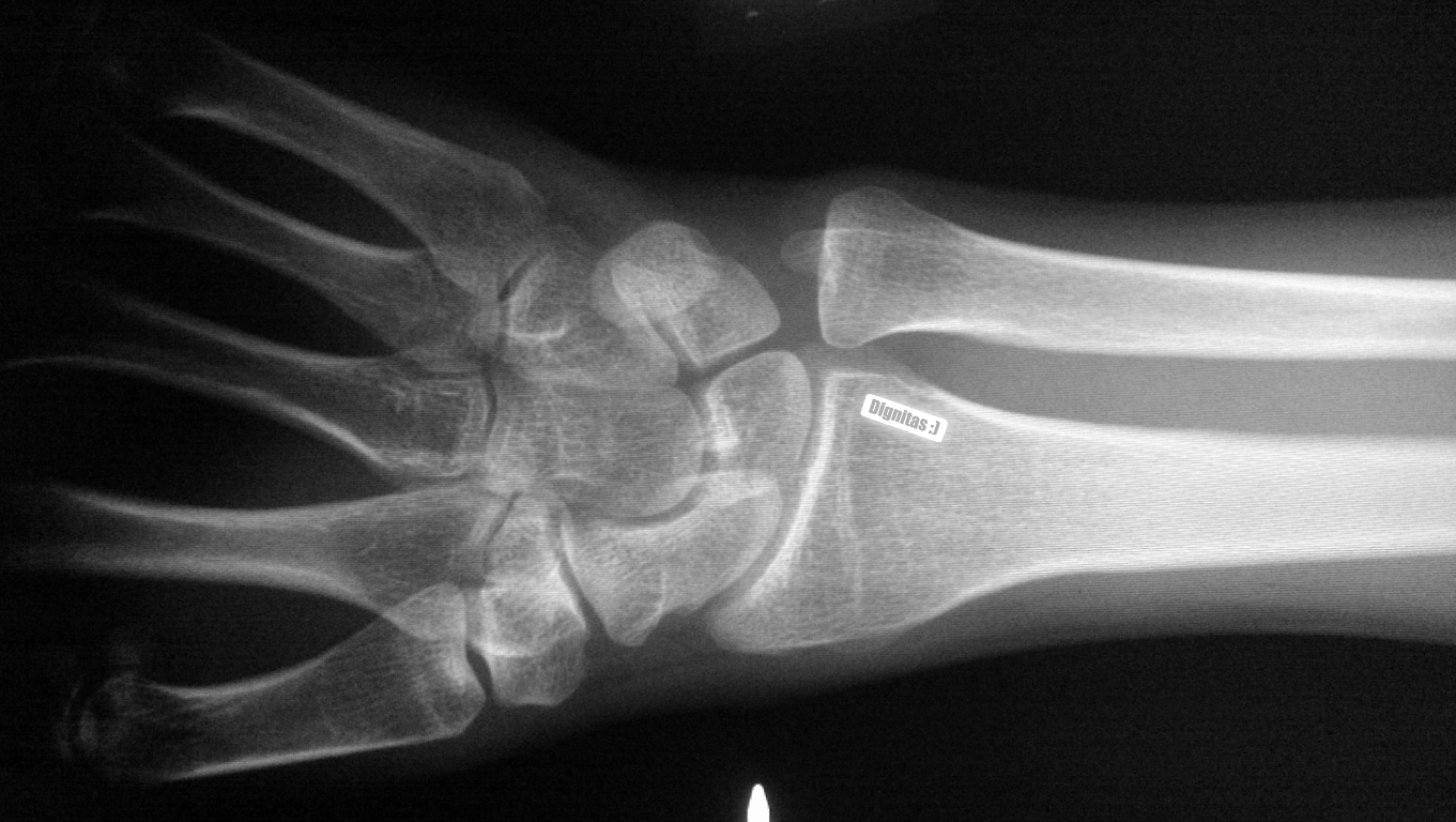 Wrist X-ray showing 'Dignitas :)' message