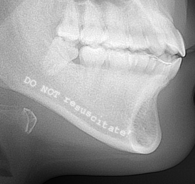 Skull X-ray showing 'Do not resuscitate' message (detail)