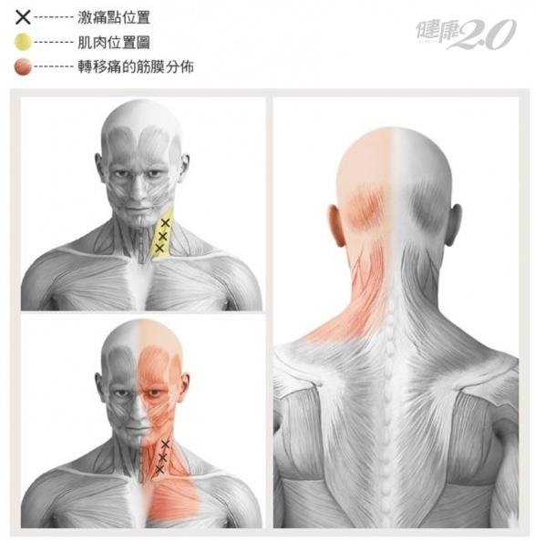 肌肉發炎是頭痛主因?醫師教你每天「轉脖子」 頭痛不再來