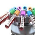 centrifuge for blood samples