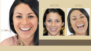 Cosmetic Dentistry by Dr. Ned Shimizu