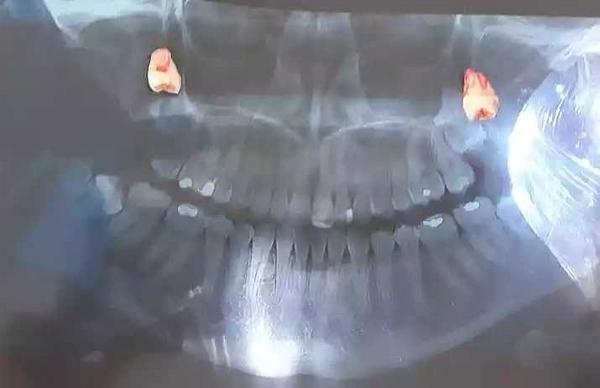 Exodoncia de cordales