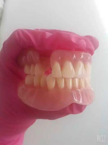 Prótesis dental en acrílico convencional