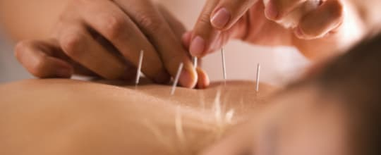 Lifestyle Acupuncture