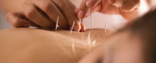 Shen Yi Acupuncture