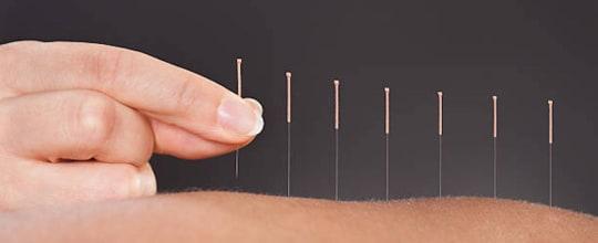 Five Roads Acupuncture