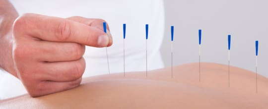 Frank Muscara Acupuncture