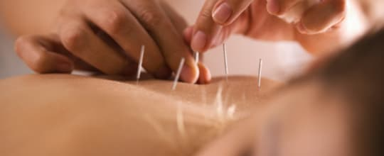 Damian McCleod Acupuncture