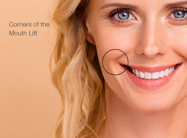 Corners-of-mouth-lift