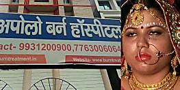 दहेजलोभियों की करतूत : एसएसबी जवान ने दहेज़ के लिए की विवाहिता को जलाने की कोशिश