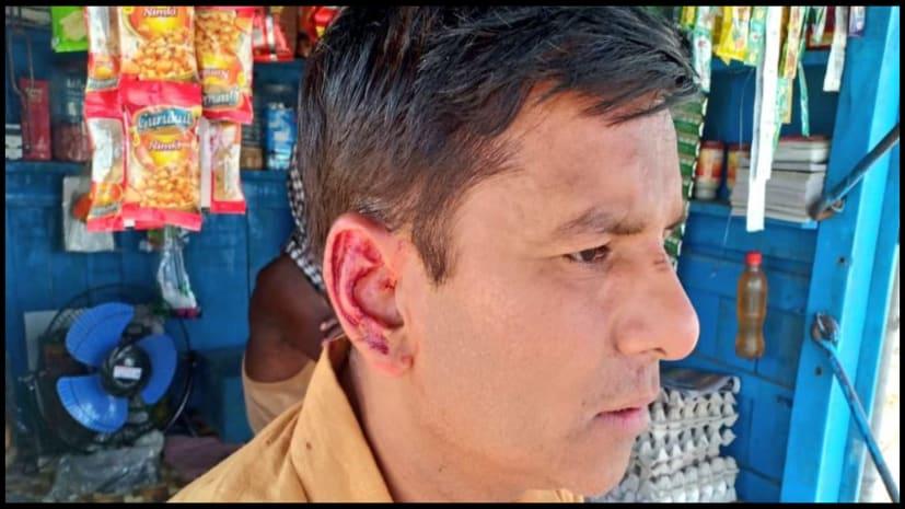मुंगेर लोकसभा में वोटिंग के दौरान निजी चैनल के पत्रकार पर जानलेवा हमला