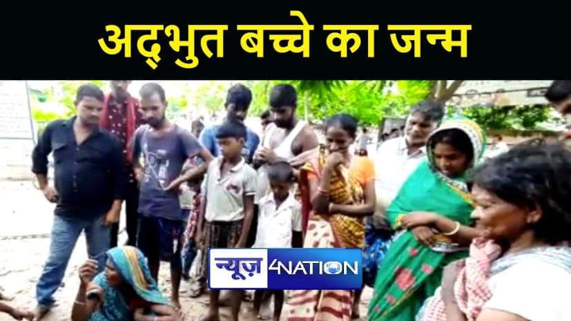भागलपुर में दो सर, चार हाथ और तीन पैर वाले बच्चे का हुआ जन्म, देखने के लिए उमड़ी लोगों की भीड़