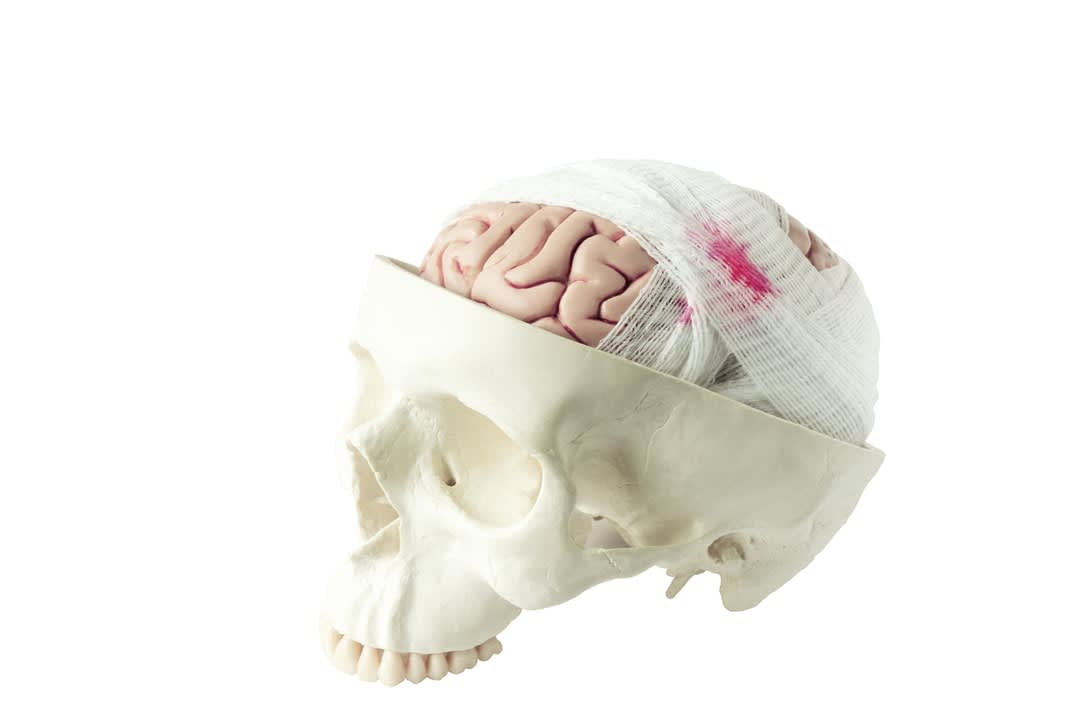 Brain model with gauze wrapping