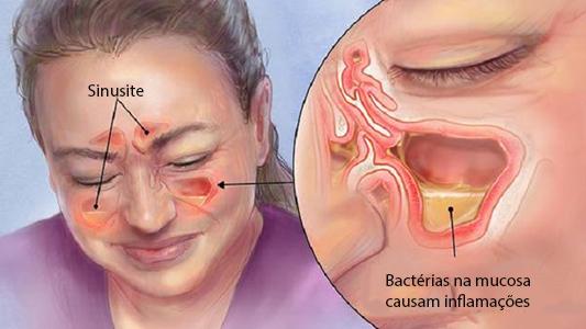 Alívio Imediato da Rinite e Sinusite Com Leite de Magnésia. 1