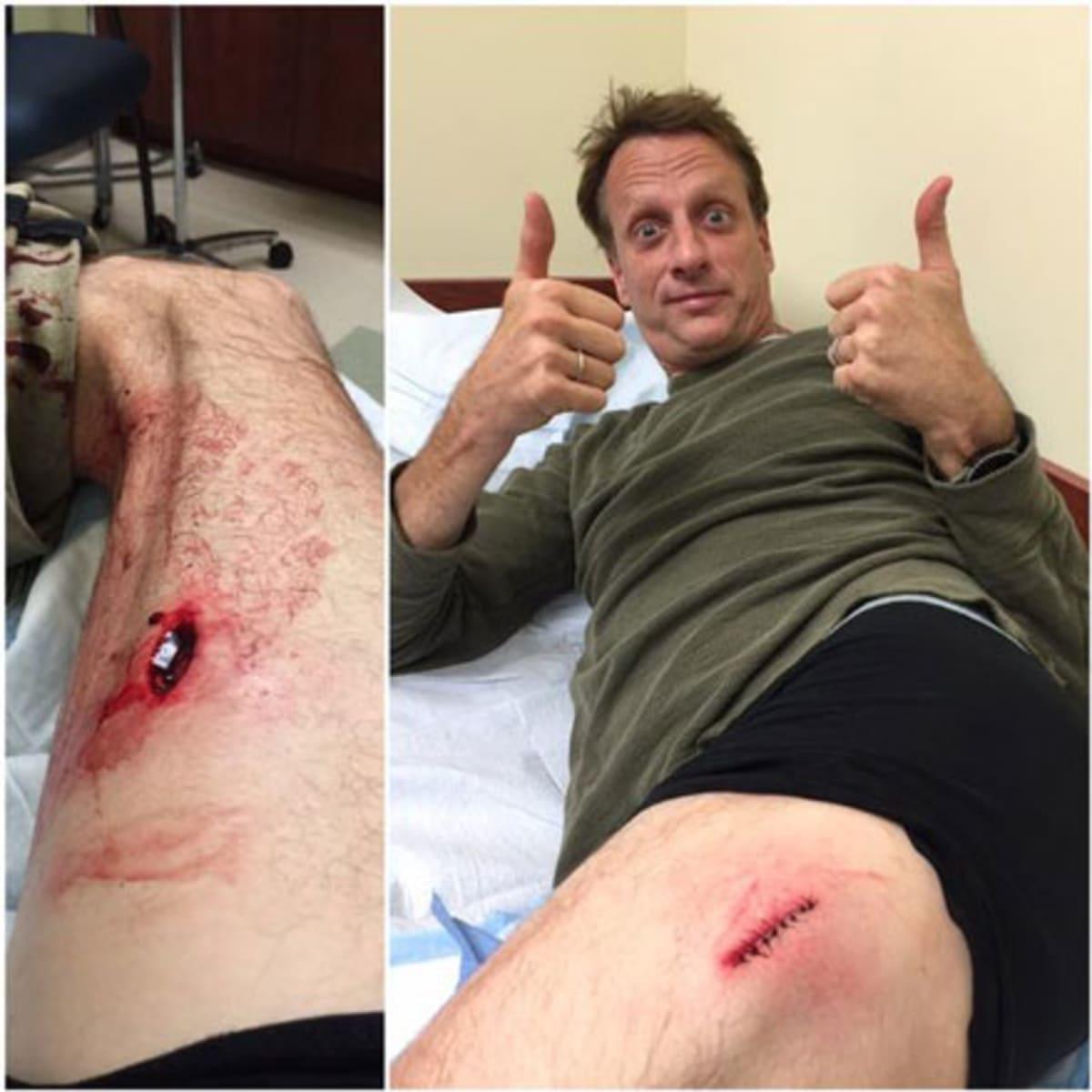 Tony hawk injuries