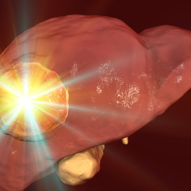 Liver Disease-Related Deaths On the Rise, Particularly with Young Adults