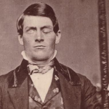 Strange Heartland History: How an Iron Bar Through the Skull Changed Neuroscience Forever