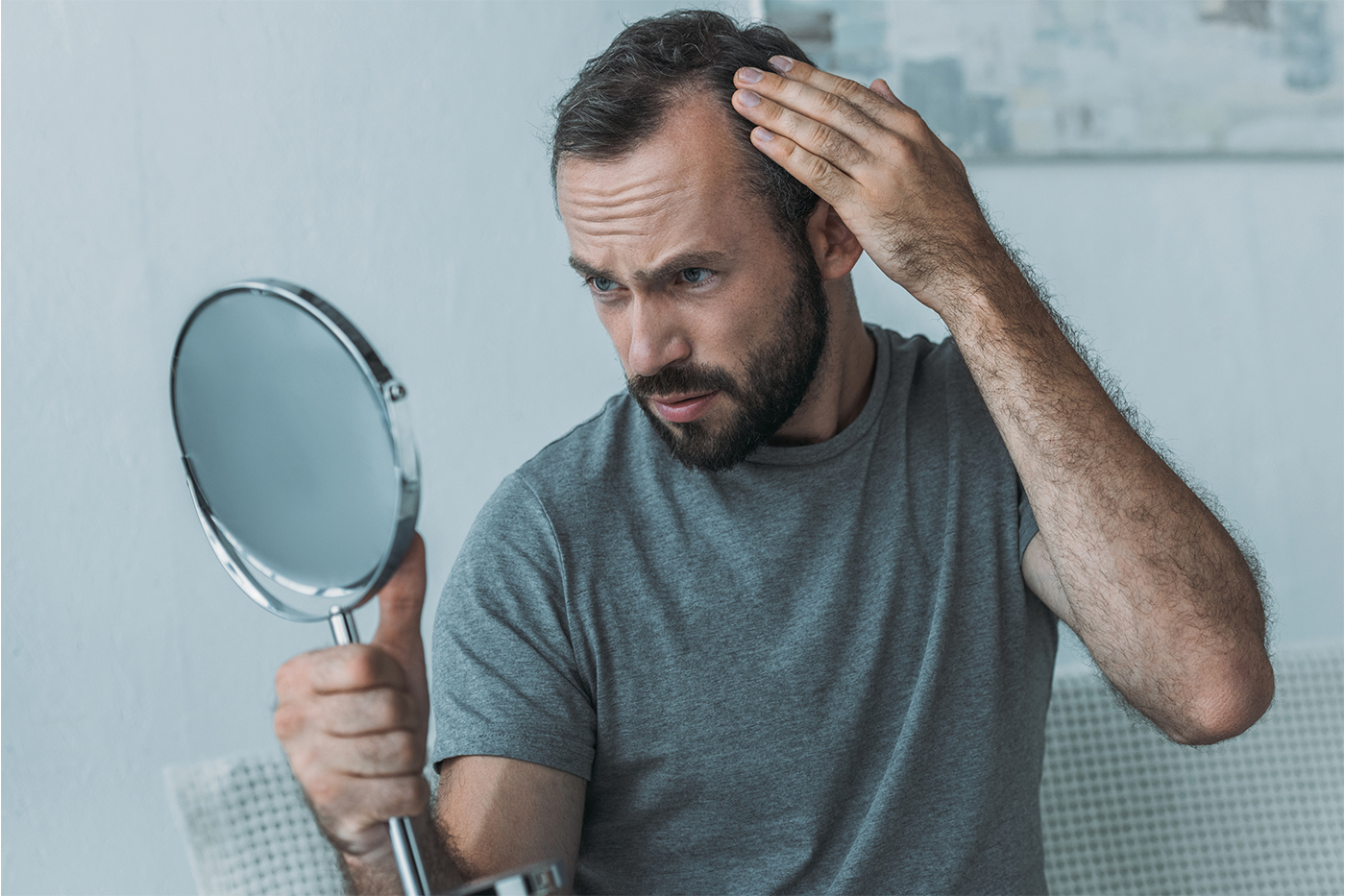 Hair Thinning in Men
