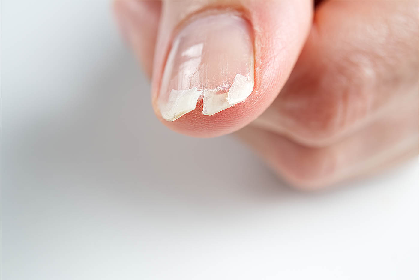 How to Fix Broken, Cracked or Flat Nails