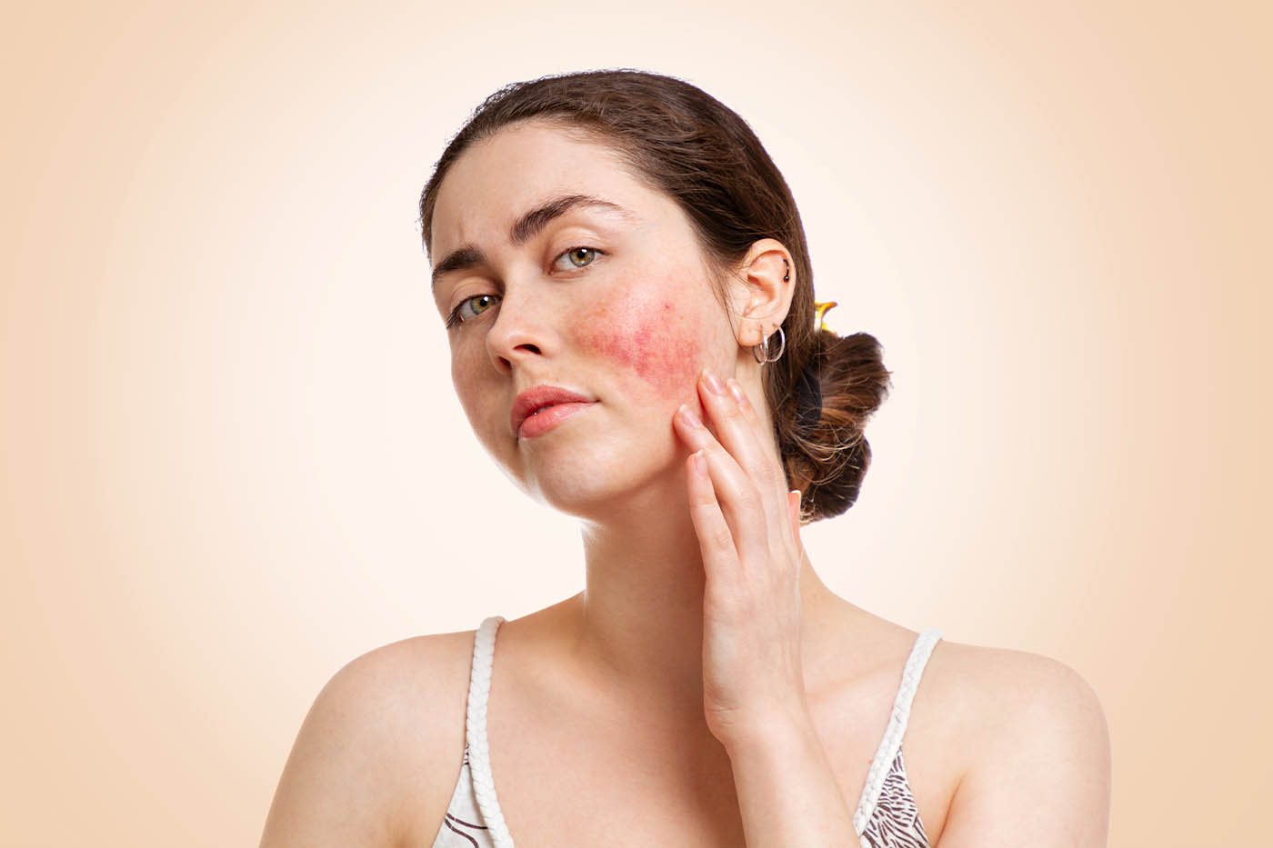 Rosacea – Stop the Redness in its Tracks
