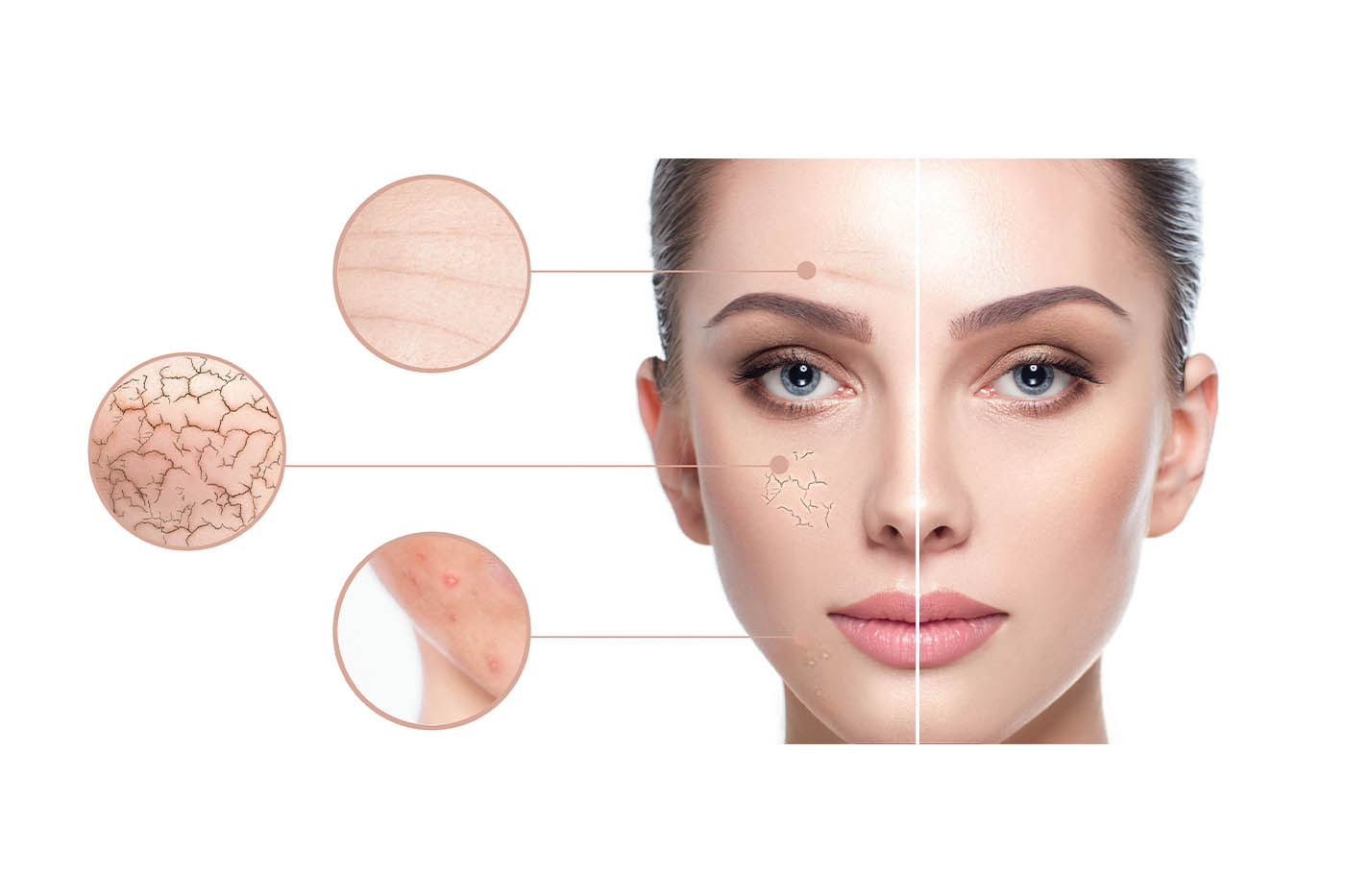 Top Professional Treatments for Common Skin Concerns