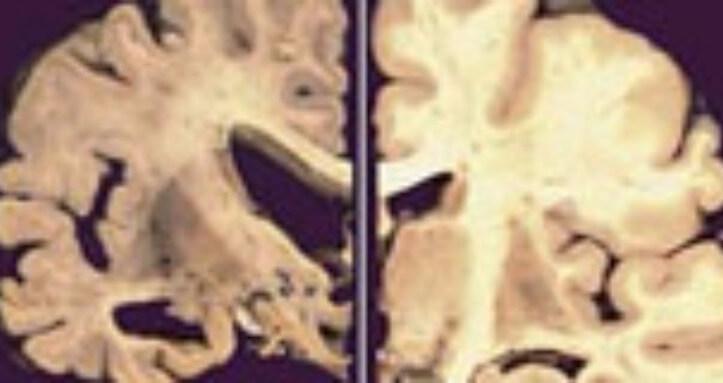 Terapia Hormonal feminina e proteção na Doença de Alzheimer