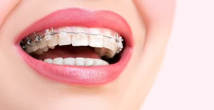Cost of Braces in South Africa 2021