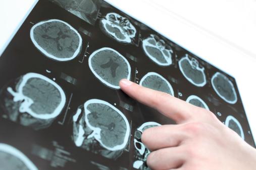 Brain scans ii hw6bzd