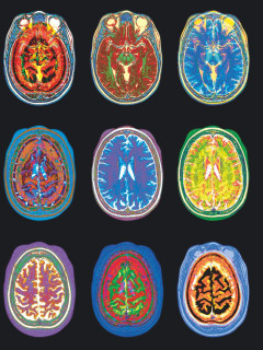 Colorful brain scans