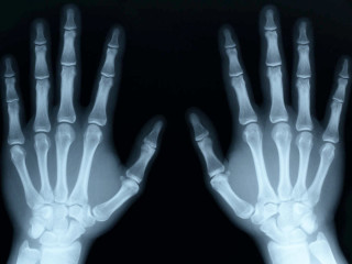 News_medical_X-ray_hands_placeholder