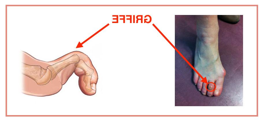 orthese pour doigt de pied en griffe